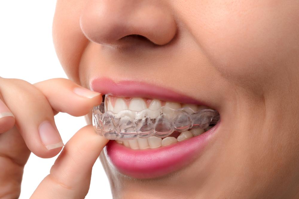 orthodontic treatment - invisalign